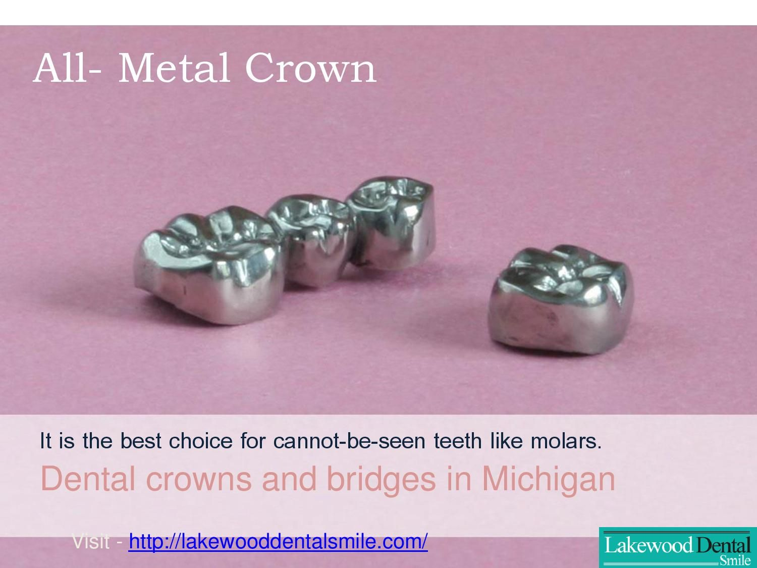 Lakewood Dental Smile offers world class root canal