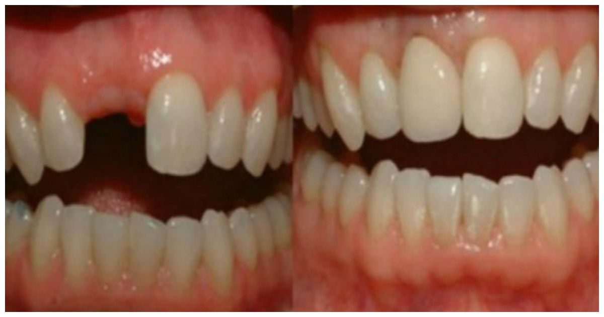 Incredible Discovery Say Goodbye To The Dental Implants