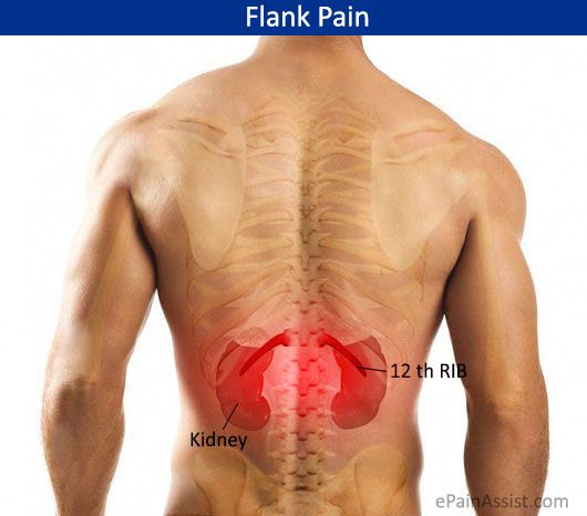 Pin On Flank Pain Torment