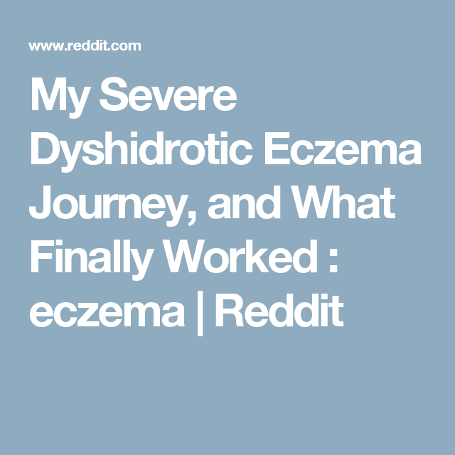My Severe Dyshidrotic Eczema Journey, and What Finally Worked