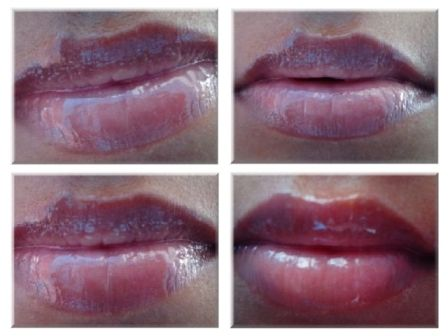 Lip Inflation Plumping Treatment by Sally Hansen #20