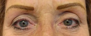 Permanent #Eyebrows http://www.radiantmedspa.net/