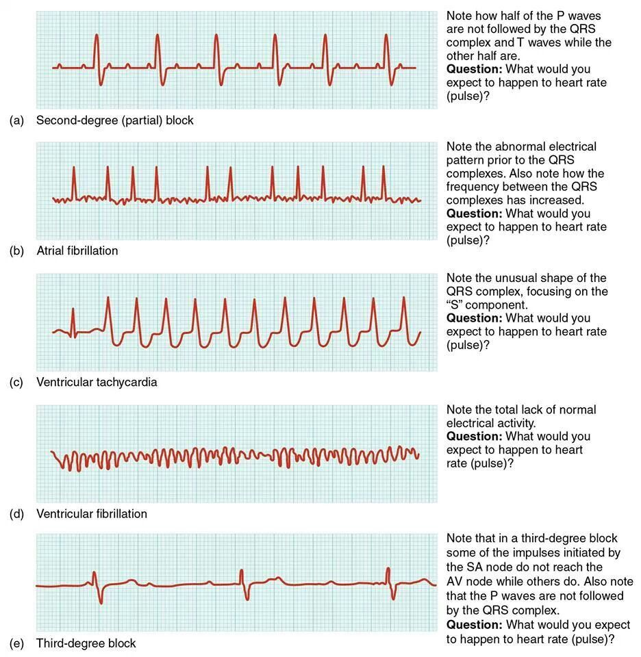ecg reading and interpretation pdf