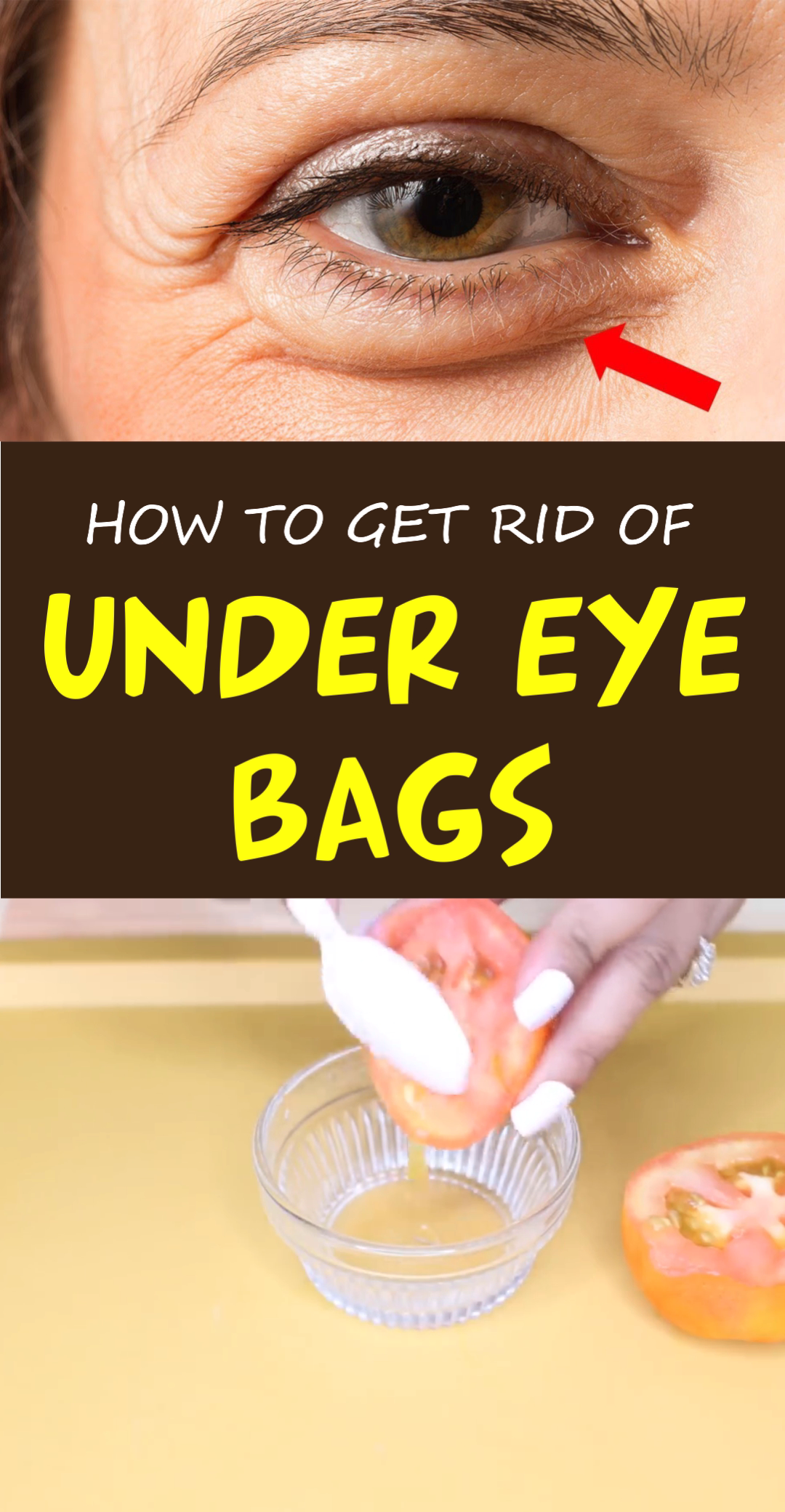 Photo of How to Get Rid of Dark Circles Under Your Eyes: Top 9 Home Remedies that Work