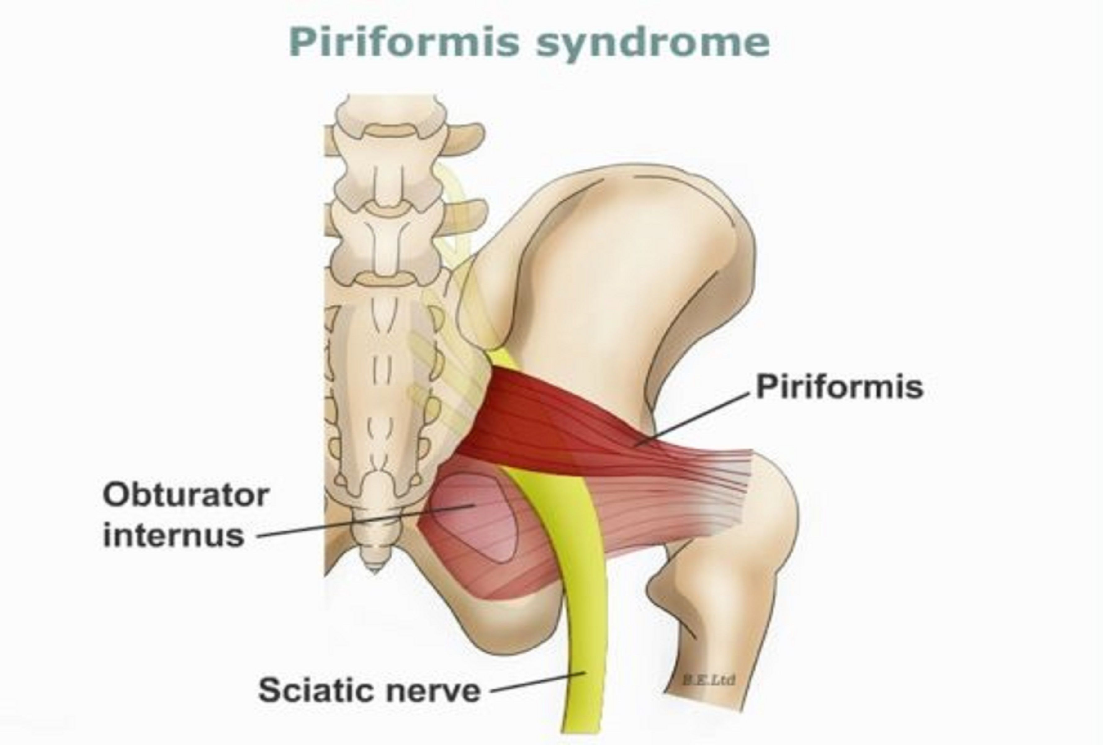 Stretching The Piriformis Muscle | Healthy | Pinterest | Piriformis ...