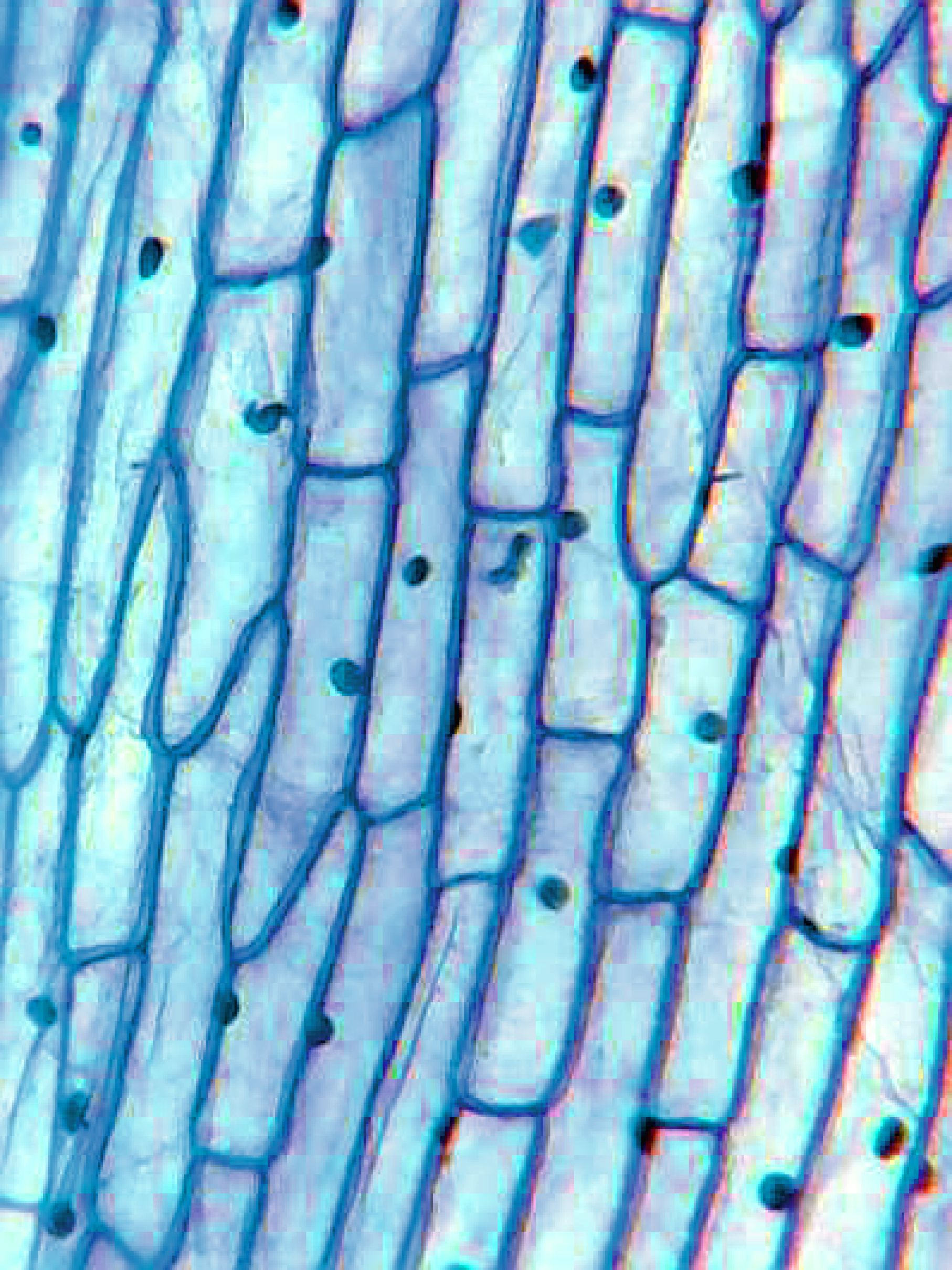 Onion Peel Cell Diagram