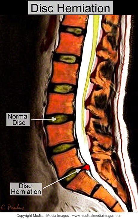 lumbosacral fájdalom a csípőízületben)