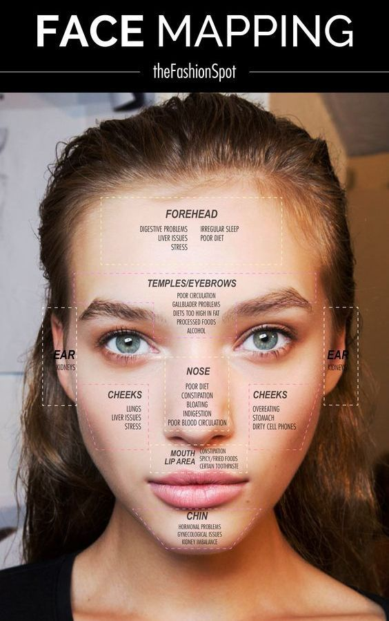 No One Factor Causes Acne Acne Occurs When Sebaceous Oil Glands