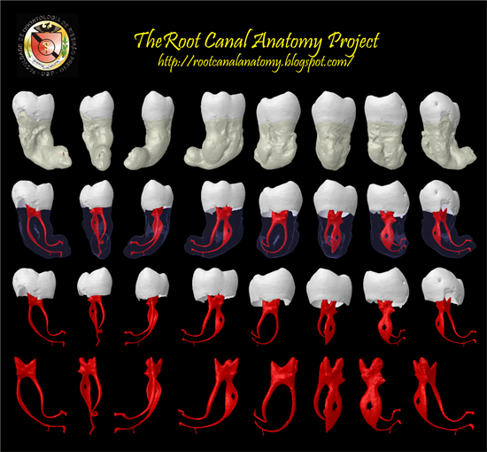 Stop Doing Endodontics Root Canals In The Dark The Root Canal