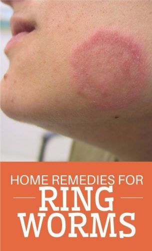 Healing Home Remedies for Ringworm Homesteading - The