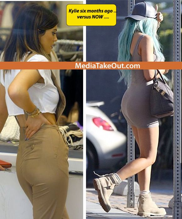 936af9df0 We Have SIDE BY SIDE Pics . . . Showing JUST HOW MUCH AZZ . .. Kylie ...