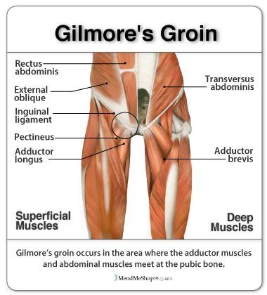 Gilmore\u0027s Groin The term \u0027Gilmore\u0027s Groin\u0027 was first recongized in