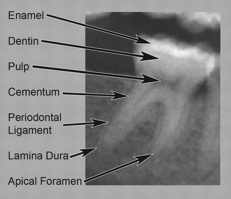 Dental anatomy - #Anatomy #Dental #dentalassistant