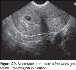 Didelphys Uterus Ultrasound Images
