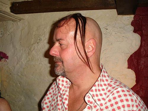 Pin By Judy On Comb Overs Prevent Hair Loss Men Going Bald Hair Loss Remedies Women