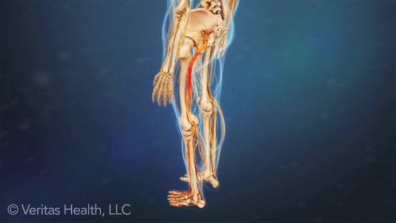 pain in lower extremities from lumbar radiculopathy
