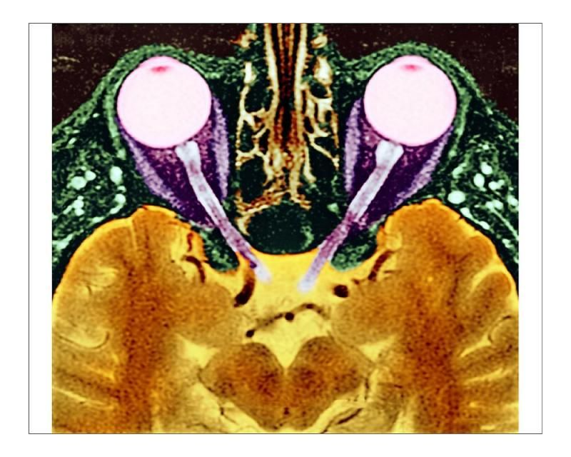 30+ 10 inch Photo. Vision and the brain, MRI scan