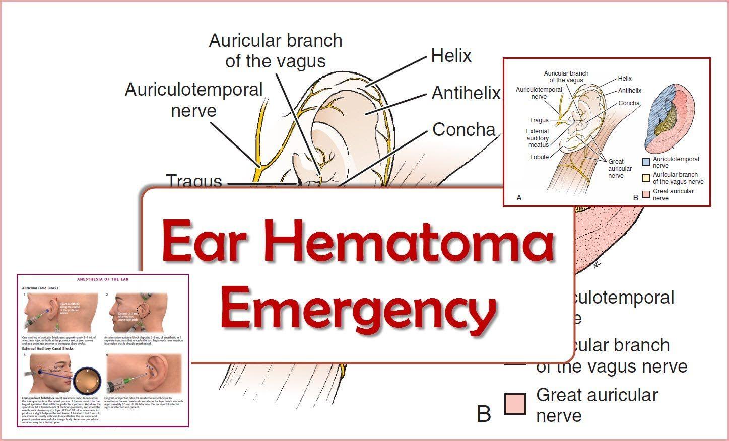 Ear hematoma emergency vagus nerve emergency emergency