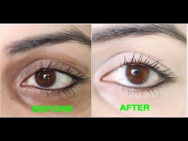 How to Remove Dark Circles Naturally in 3 Days (100% ...