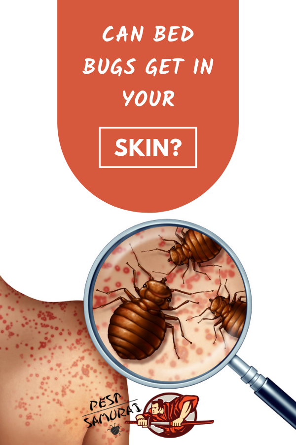 Bed Bugs on Skin Can Bed Bugs Get in Your Skin Bed bugs