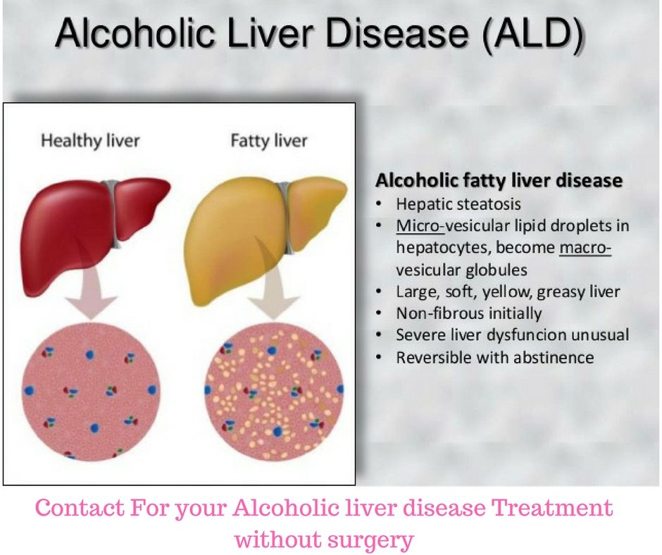 aids treatment liver damage - 940×788