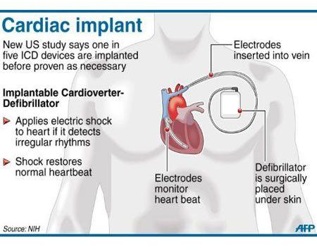 Pacer ppt |Defibrillator Surgery Risks