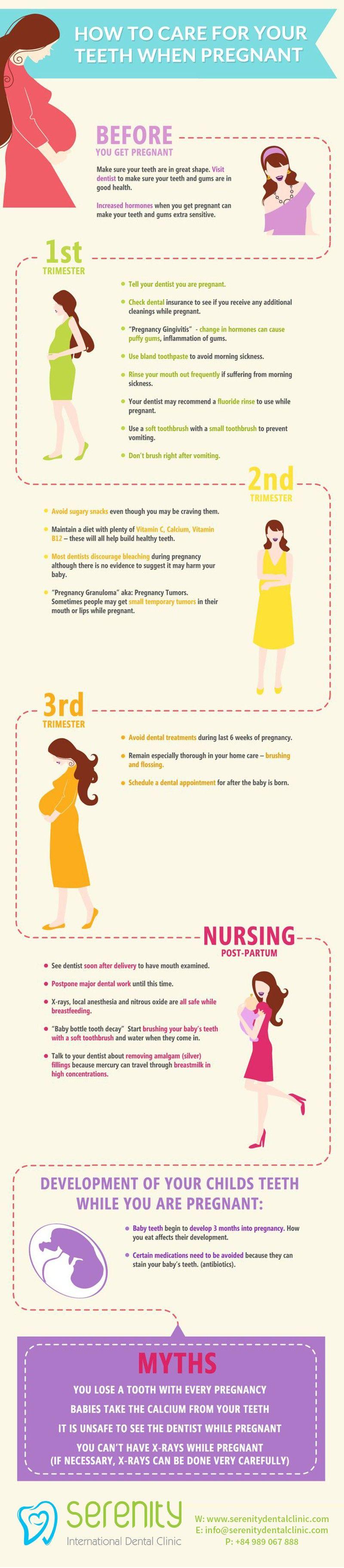 Épinglé sur Dental Infographics