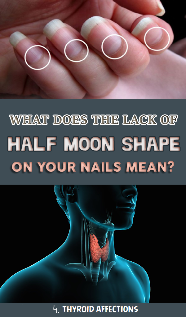 What does the lack of Half Moon Shape On Your Nails Mean | Pinterest ...