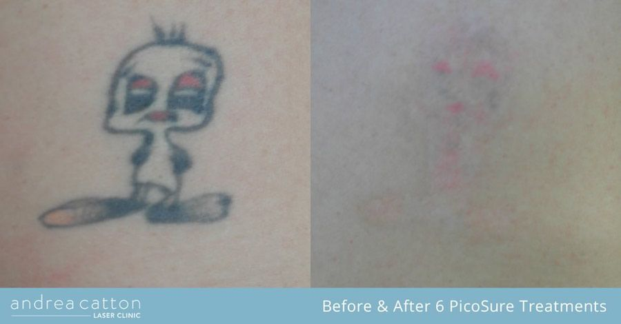 Stomach Tattoo Before And After Six Picosure Laser Treatments Tattooremoval Tattoos Inked Tattooregret Design My Own Tattoo Laser Tattoo Tattoo Eraser