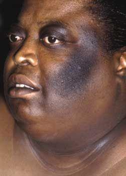 Black Skin Hyperpigmentation Treatment Gt Gt Gt You Can Get