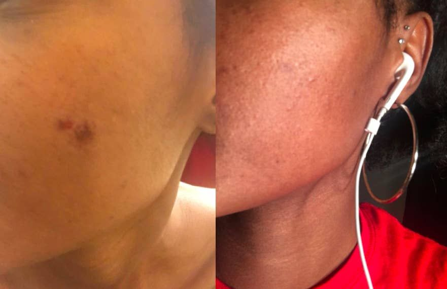 Scars mederma for piercing Mederma Advanced