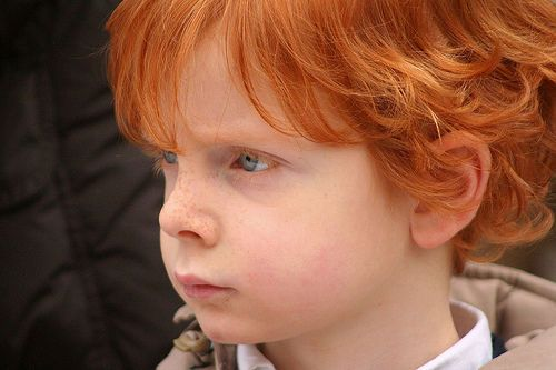 The Red Hair Gene Is Most Common In Irish Blood Irish People Dna Dna Genealogy