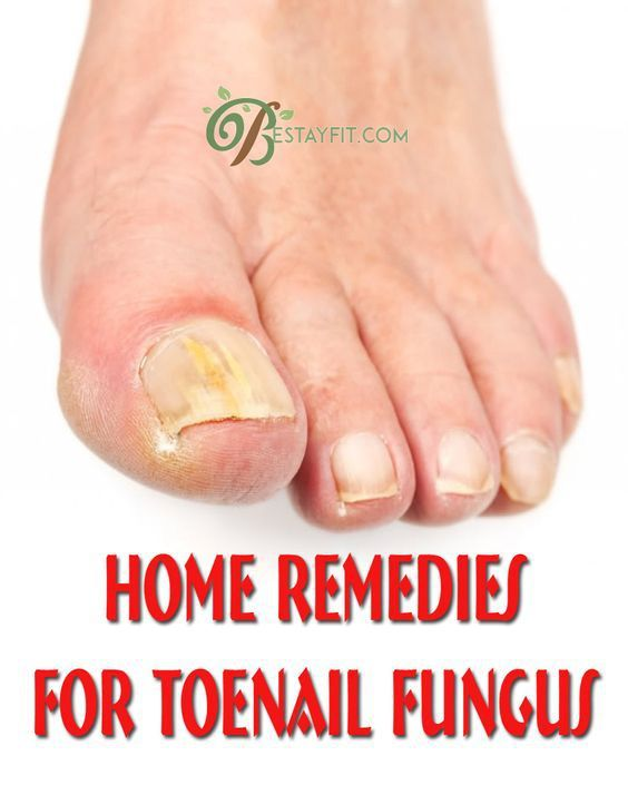 Home Remedies for Toenail Fungus – Bestay Fit | Health Tips | Toe ...
