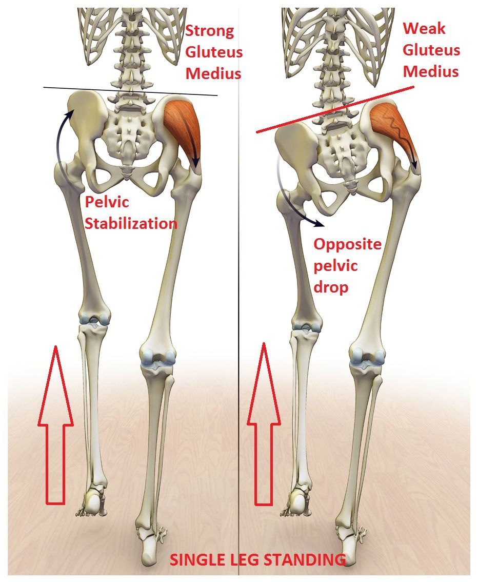 Prevalence of gluteus medius weakness with nonspecific low back pain muscles publicscrutiny Images