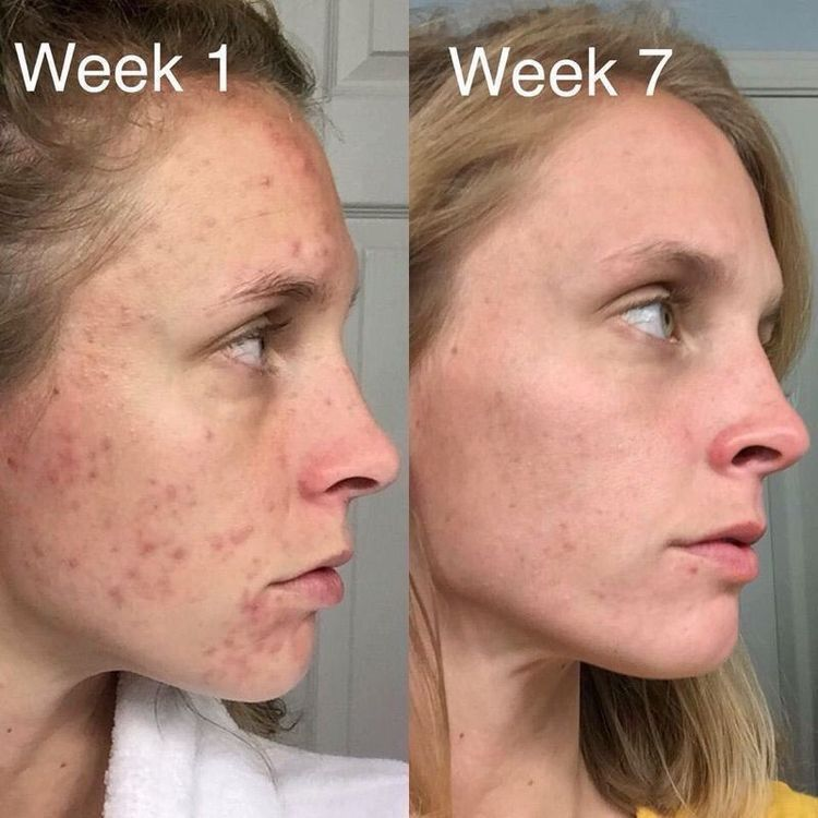 Scars Speak: Do You Or Someone You Know Have Acne? Don't Suffer! Rodan