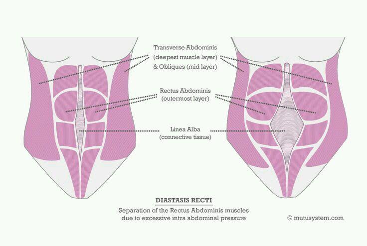 Supermom que es la diastasis de rectos y como