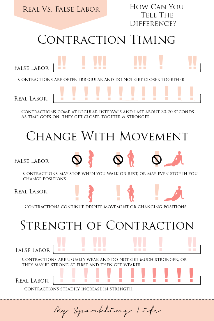 False contractions or the onset of labor
