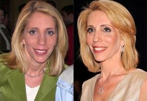 Dana Bash Plastic Surgery Before And After Photos | Medium hair styles,  Medium hair styles for women, Cool hairstyles