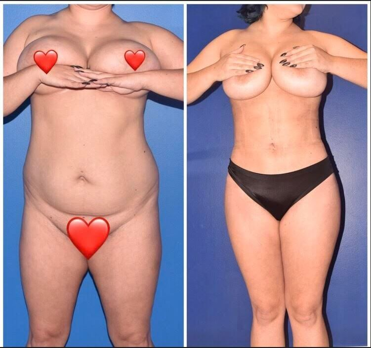 Before And After Liposuction of full abdomen , flanks and