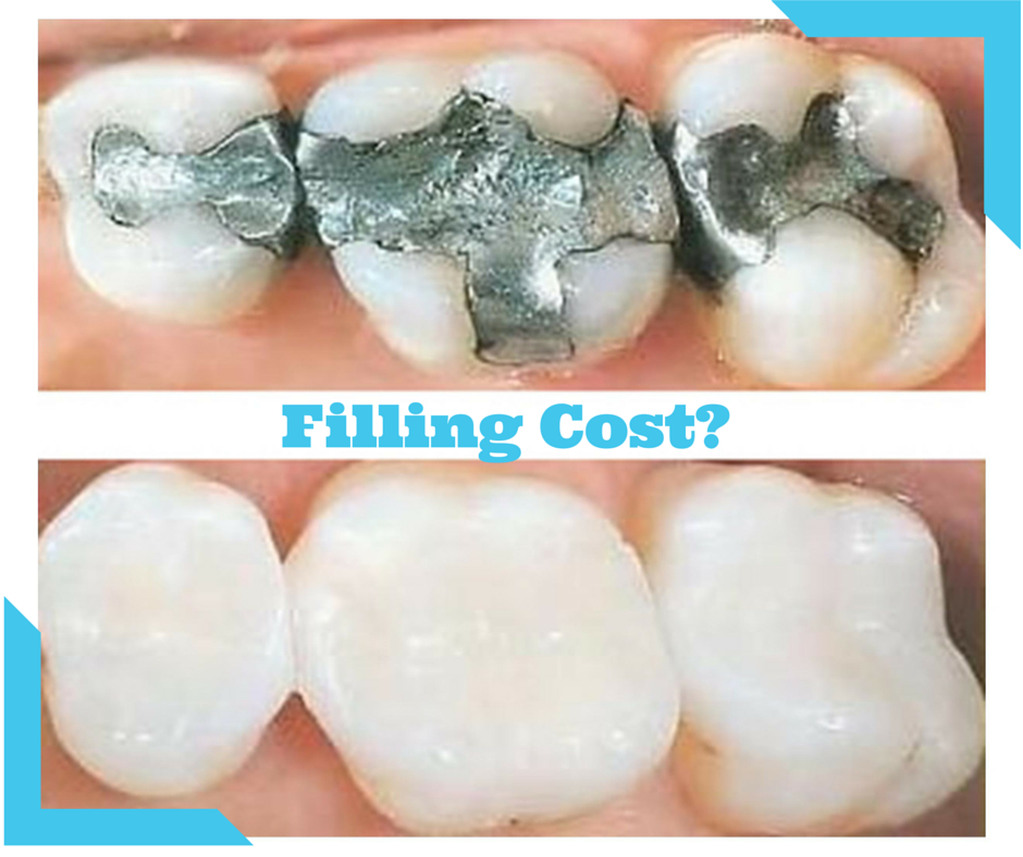 Are you searching for How Much Does a Filling Cost? here ...