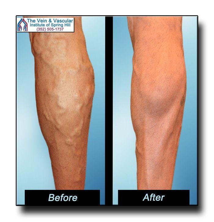 varicose veins cosmetic treatment
