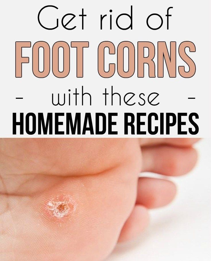 Get Rid Of Foot Corns & These Homemade Recipes!!!  #beautytips  #fitness