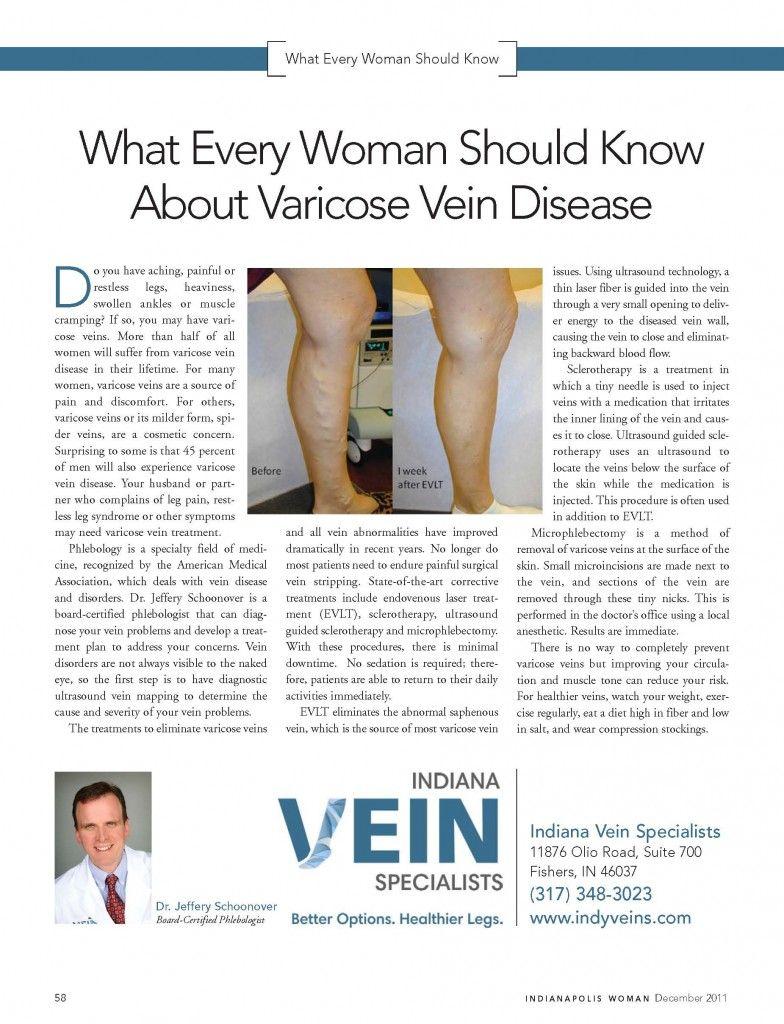 varicose veins breastfeeding