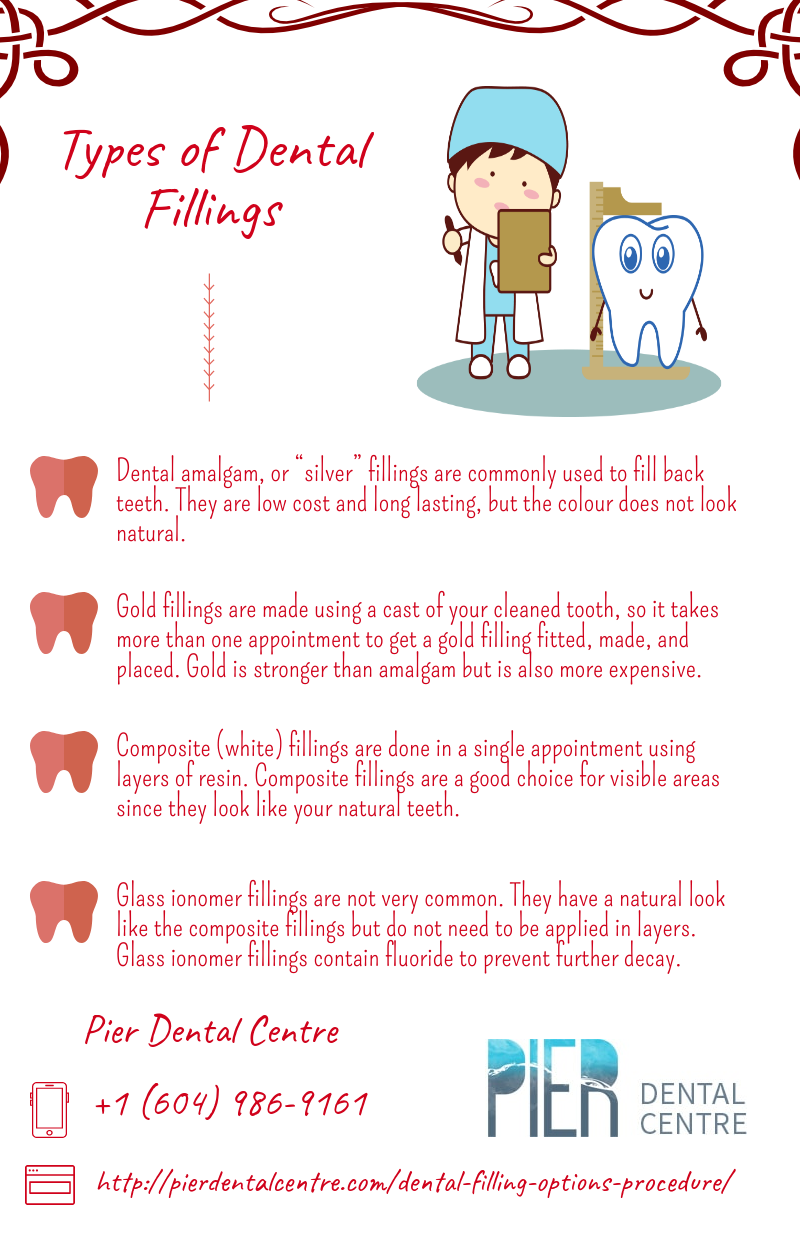 Dental Filling Cost Vancouver and Procedures - North