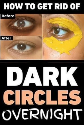 How To Get Rid Of Dark Circles Under Eyes Overnight
