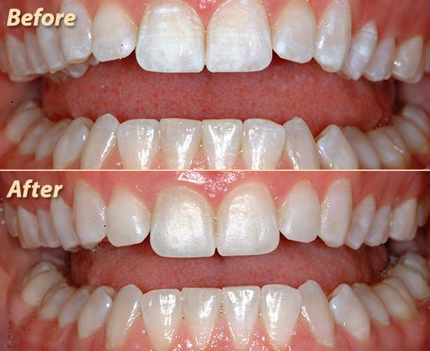 cb4f92f83fcb916cee8f9232dcab194a - How To Get Rid Of White Spot Lesions On Teeth