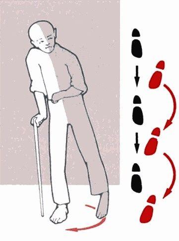 Gait Of A Hemiplegic Patient Circumduction Of The Spastically