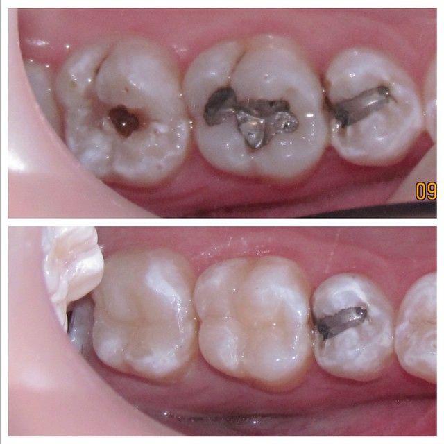 #odontologia #odontologo #dientes #sonrisa #dentistry #dentist #teeth #smile #anatomiadental #odontologiarestauradora #odontologiaestetica #esteticadental #dentalesthetics #odontologiarehabilitadora #rehabilitacionoral #prostodoncia #prosthodontics #protesisdental #protesisfija #coronas #carillas #resinas #pasionporlaodontologia #odontofotosreales #líneaoral @ivoclar