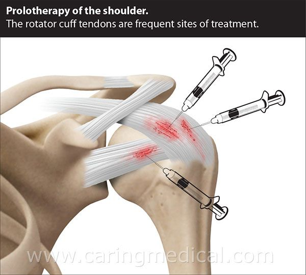 Shoulder Prolotherapy | Shoulder Injuries and Instability Treatment ...