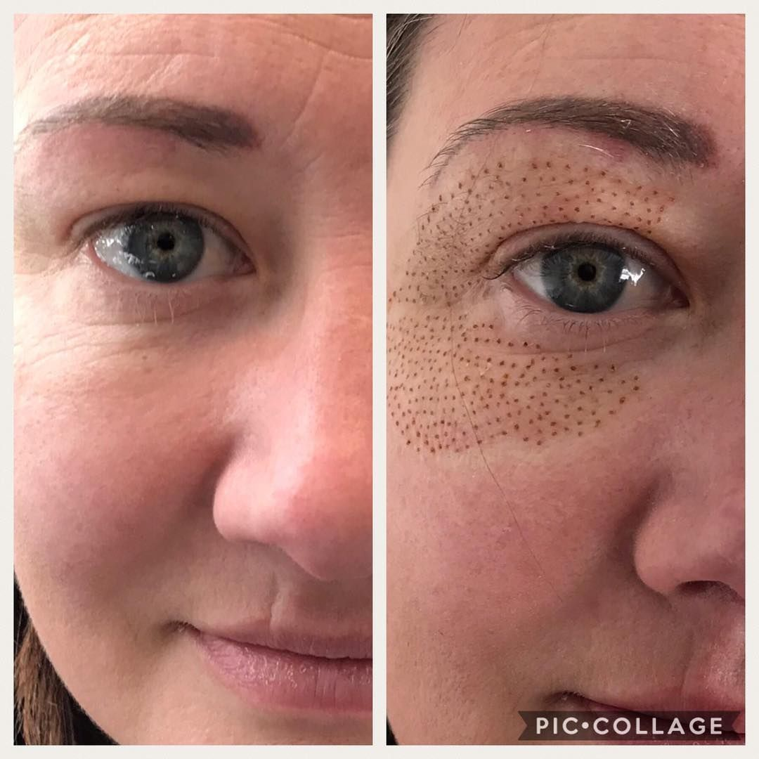 50 Off To Anyone Booking This Week Do Not This Amazing Chance At Younger Healthier And Wrin Skin Tightening Treatments Laser Eye Surgery Cost Skin Tightening